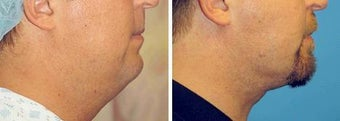 Chin Liposuction before 640738