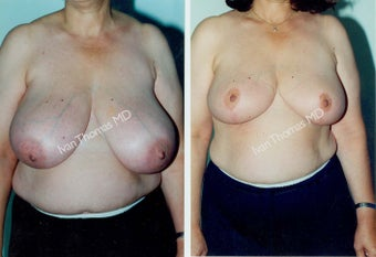 Breast Reduction before 243752