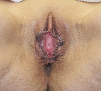Vaginoplasty before 260993