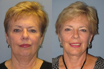 Lite Lift™, liposuction of the neck, lower eyelid lift after 523518