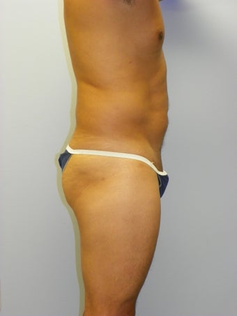 SMARTLipo MPX before 234495