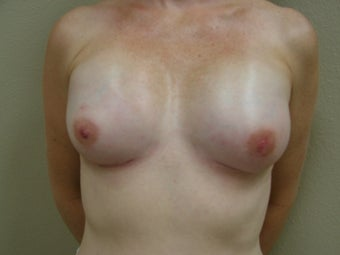 Breast Reconstruction after 346595