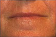 Active & Deep FX ~ CO2 Laser Skin Resurfacing before 130744