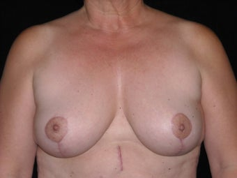 Breast lift (mastopexy) after 231908