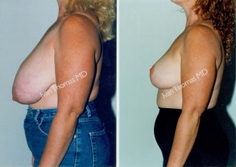 Breast Reduction before 243747