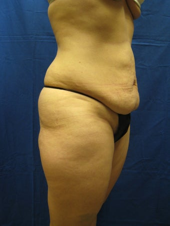 Tummy Tuck and Liposuction Waist before 364835