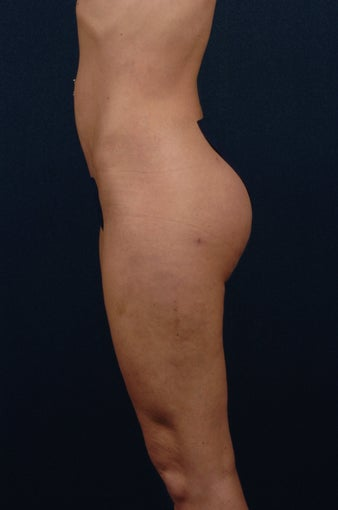 Brazilian Buttock Lift after 269886