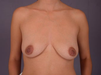 Breast Lift / Breast Augmentation before 291108