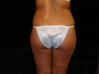 Buttocks Augmentation by Fat Transfer  before 186433
