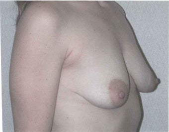 Breast lift with augmentation 633947