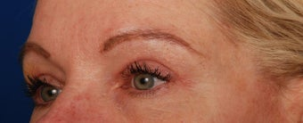 Upper Lid Blepharoplasty after 269836