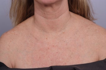 decollete laser resurfacing after 253111