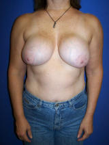 Revisionary breast augmentation with a lift before 124919