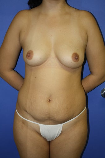 transaxillary endoscopic bilateral breast augmentation before 285069
