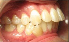 Invisalign Treatment before 346651