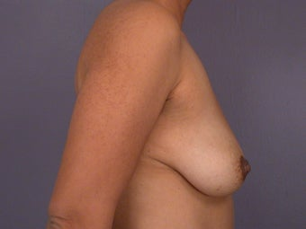 Breast Lift / Breast Augmentation before 291082