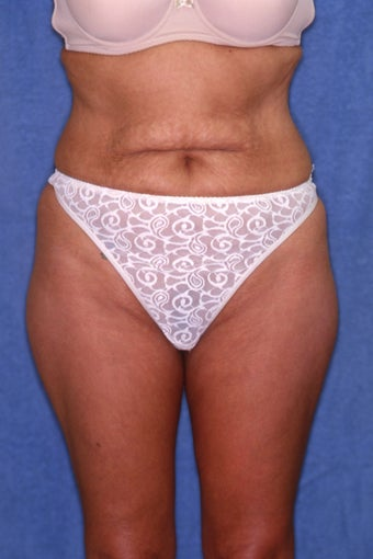 Tummy Tuck with Liposuction before 411589
