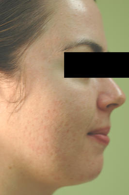 Laser Acne Treatment after 82991