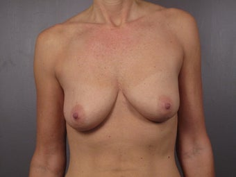 Breast Lift / Breast Augmentation    before 291049