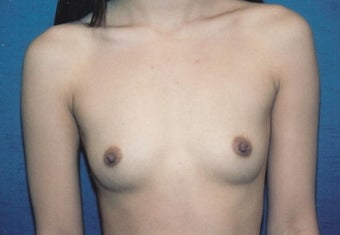 Breast Augmentation before 260798