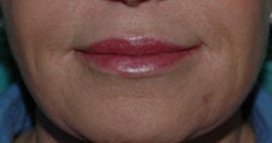 Lip Augmentation with Restylane after 118311