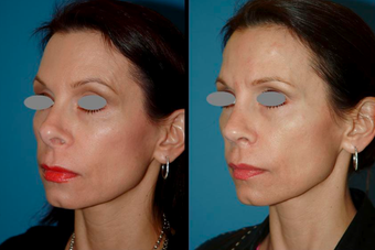 Revision Rhinoplasty (open) 306788