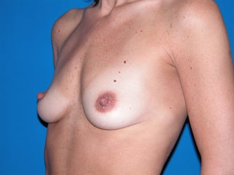 Breast Augmentation before 235342