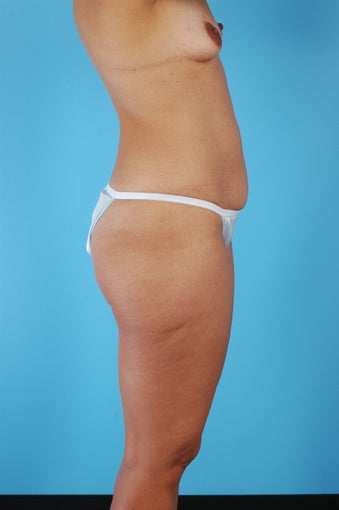 Tummy Tuck, Liposuction, Breast Augmentation 458976