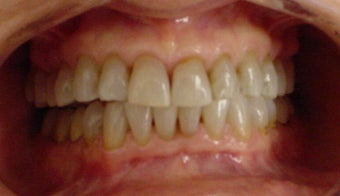 whitening tetracycline stained teeth before 359227
