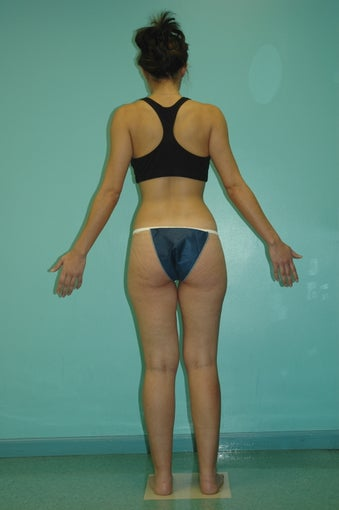 Liposculpture of inner and outer thighs before 272109