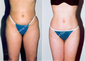 Liposuction before 242862