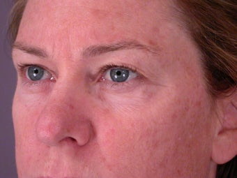 Eyelid Surgery before 306448