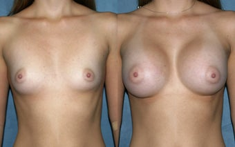 Breast Augmentation - Silicone before 125315