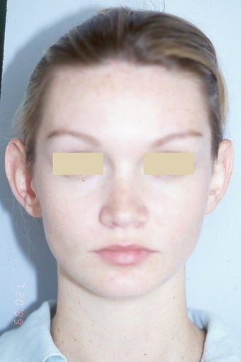 Otoplasty before 66684