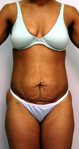 Abdominoplasty before 534256