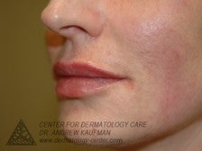 Juvederm Injection to Augment Lip Line after 315096