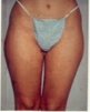 Liposuction before 542454