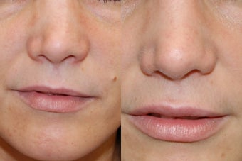 Non-Surgical Rhinoplasty and Lip Augmentation with Silikon-1000 before 136320