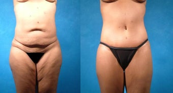 Tummy Tuck before 101844