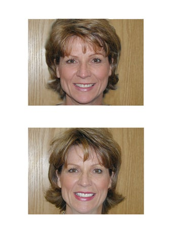 Cosmetic Dentistry- Veeners and Teeth Whitening before 332847