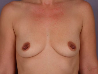 Breast Augmentation  before 304987