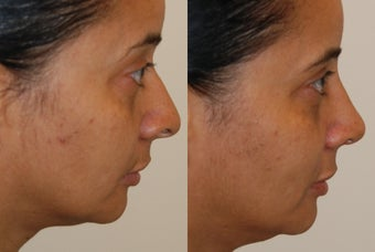 Rhinoplasty, 1 month post-op. Profile view