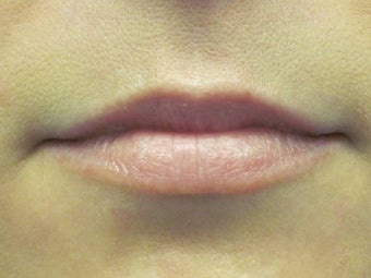Lip Augmentation before 379519