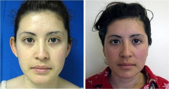 Otoplasty before 512855