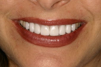 Tetracycline Stains treated with Veneers after 114219