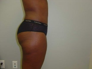 Tummy tuck - side view after 620887