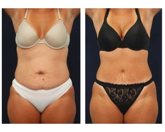Tummy Tuck or Abdominoplasty before 283158