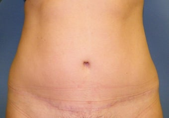 Abdominoplasty after 560975