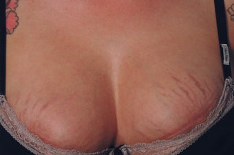 Stretch Mark Removal on the Breasts Before and after Laser