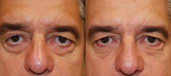 Silikon-1000 Injectable Filler Treatment for Lower Eyelid Bags before 130666